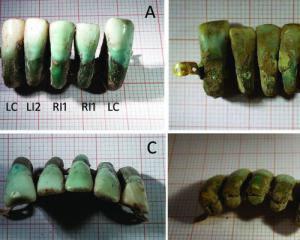 В Италии заметили протез из настоящих зубов из Средневековья