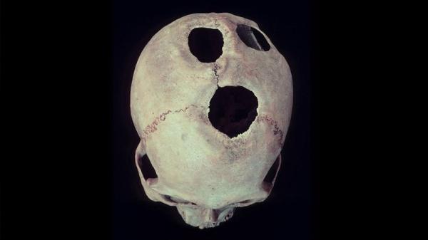 В Китае трепанацию черепа мастерили более 3,5 тысяч лет назад