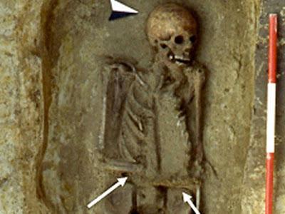 Замечен скелет средневекового итальянца с ножом вместо руки